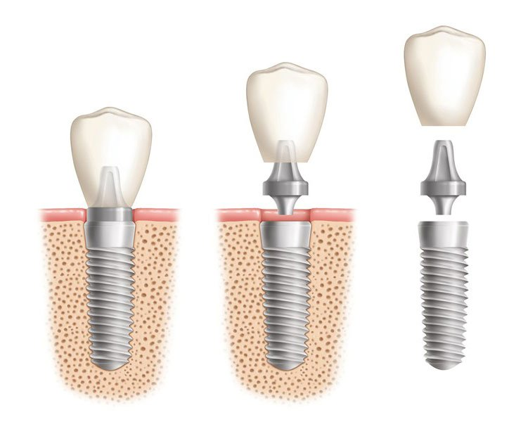 Lietuvoje kasmet įsriegiama 43 000 dantų implantų