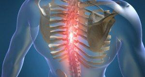 Osteochondroze