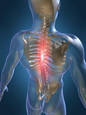 hipertenzija, kurią sukelia osteochondrozė)