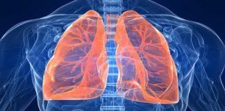 Kvėpavimo organų ligos ir slauga