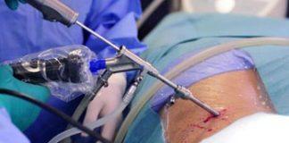 Pirmą kartą pasaulyje skilvelio aneurizmos gydymui pritaikyta minimaliai invazinė procedūra