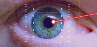 akių gydymas lazeriu